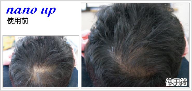 ナノアップ増毛使用例