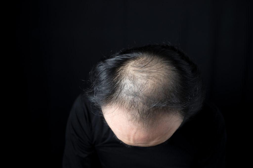 薄毛とハゲの境界線